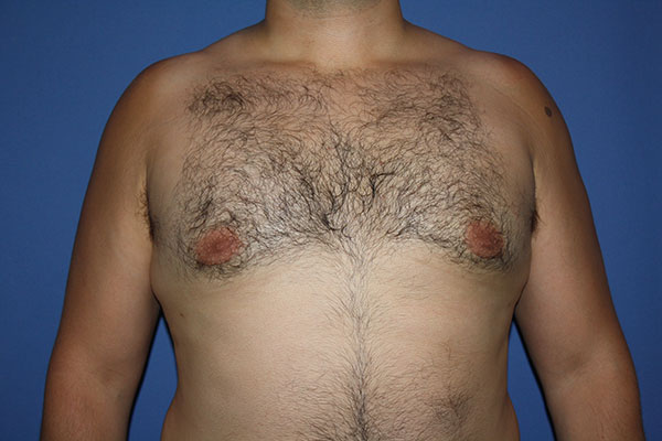Gynecomastia Surgery Long Island | NYC | Male Breast Reduction NYC