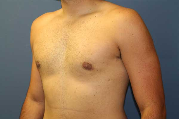 Springfield Medical Aesthetic, P.C. | Gynecomastia Surgery
